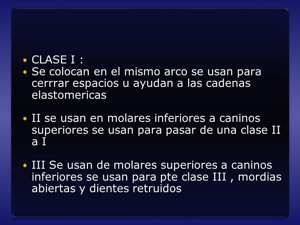CLASE I : Se colocan en el mismo arco se usan para cerrrar espacios u ayudan a las cadenas elastomericas.