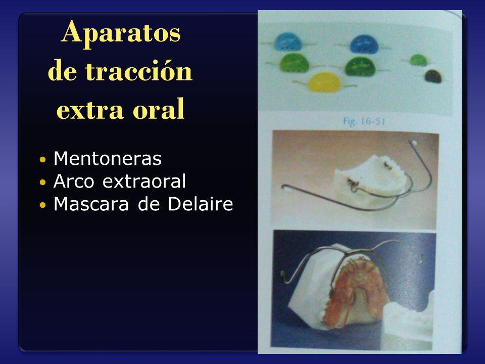 Aparatos de tracción extra oral