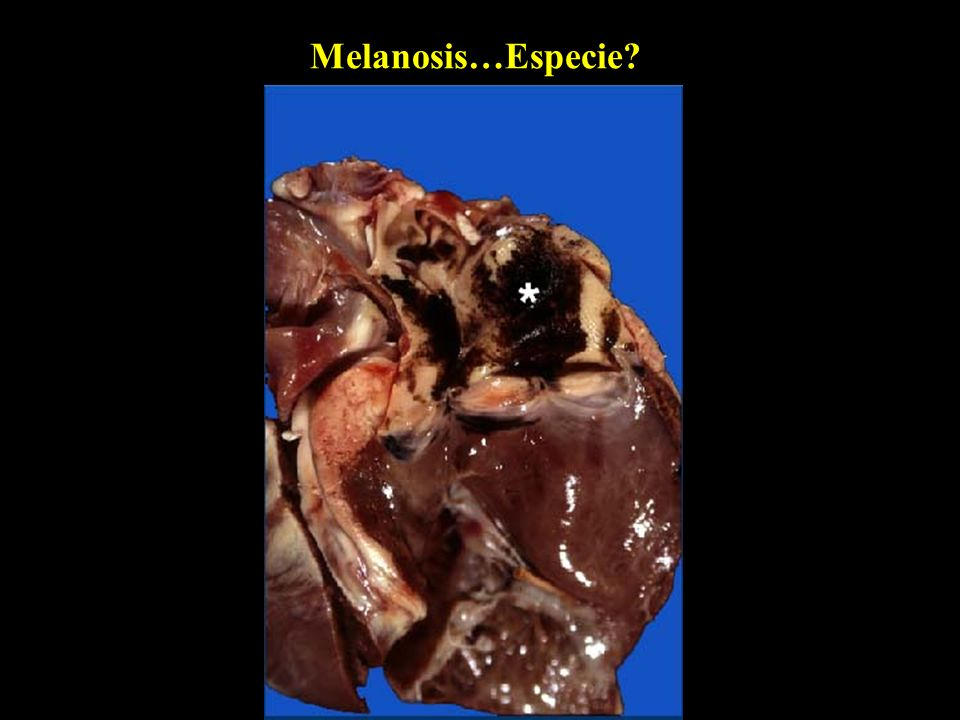 Melanosis…Especie