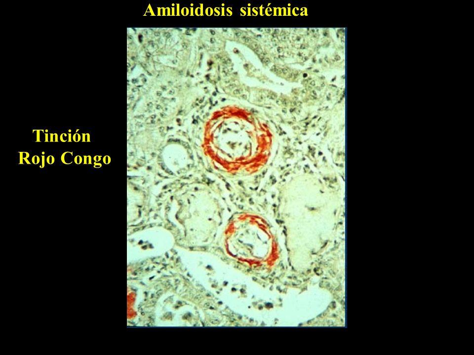 Amiloidosis sistémica