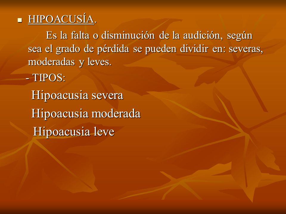 Hipoacusia leve HIPOACUSÍA.