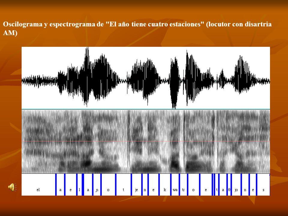 Oscilograma y espectrograma de El año tiene cuatro estaciones (locutor con disartria AM)