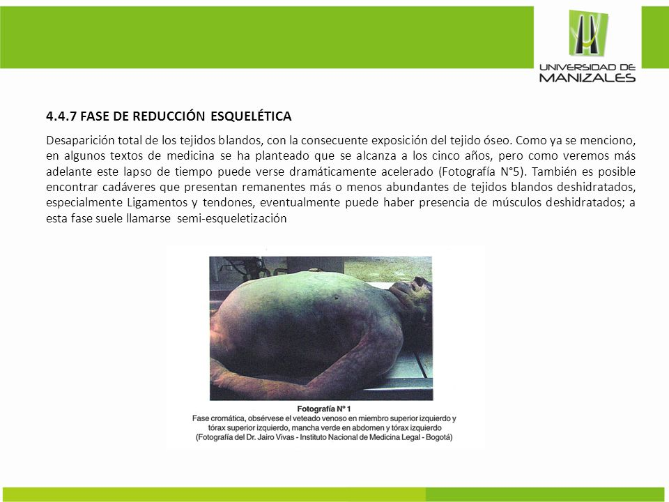 4.4.7 FASE DE REDUCCIÓN ESQUELÉTICA