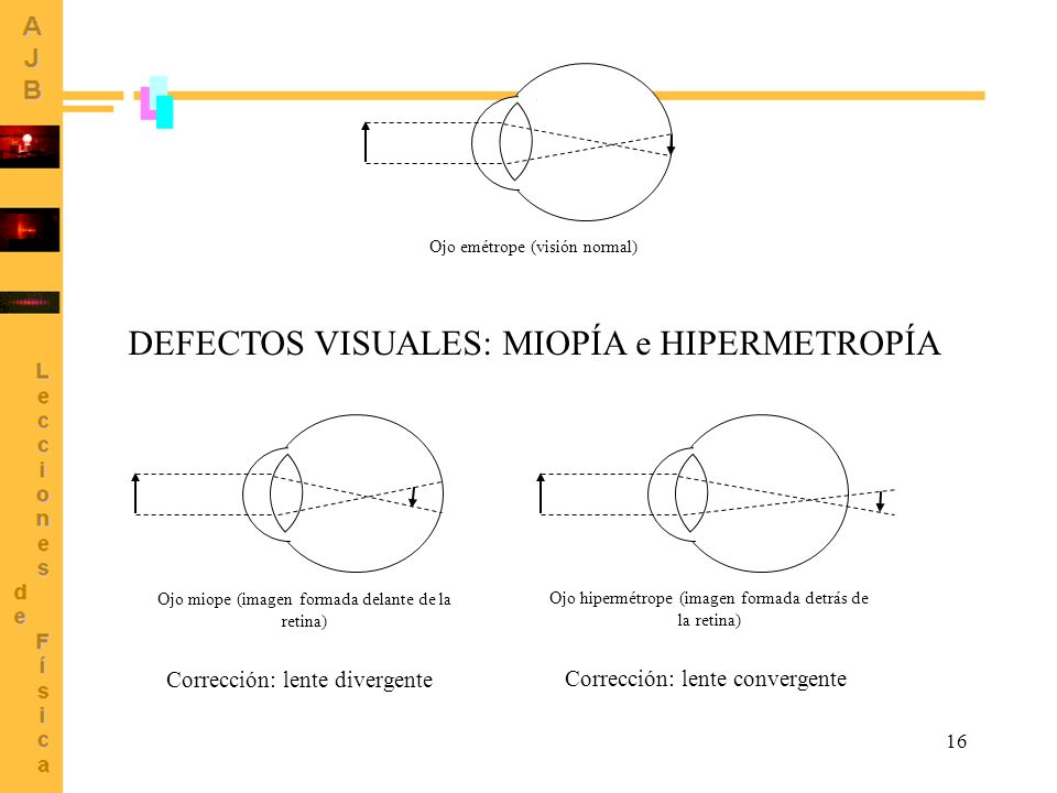 DEFECTOS VISUALES: MIOPÍA e HIPERMETROPÍA