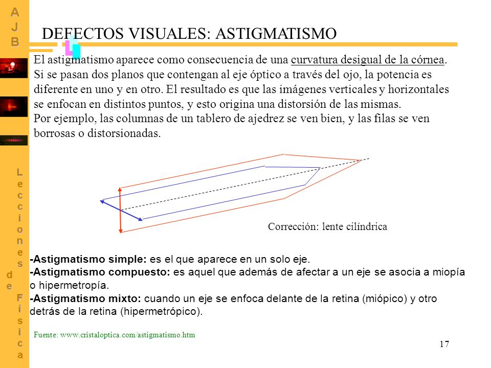 DEFECTOS VISUALES: ASTIGMATISMO