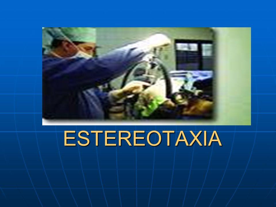 ESTEREOTAXIA