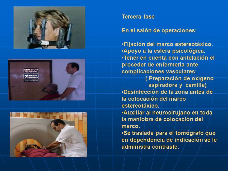 Tercera fase En el salón de operaciones: Fijación del marco estereotáxico. Apoyo a la esfera psicológica.
