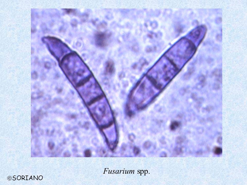 Fusarium spp. SORIANO