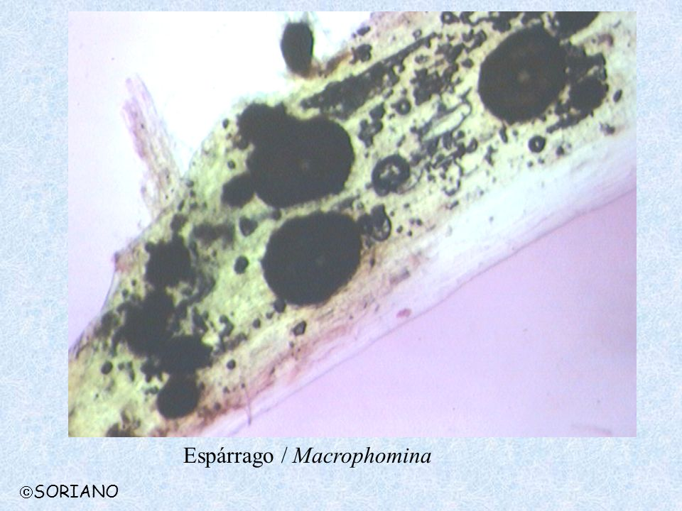 Espárrago / Macrophomina