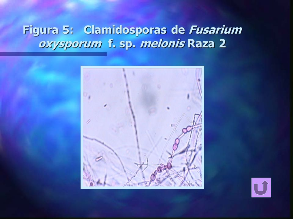 Figura 5: Clamidosporas de Fusarium oxysporum f. sp. melonis Raza 2