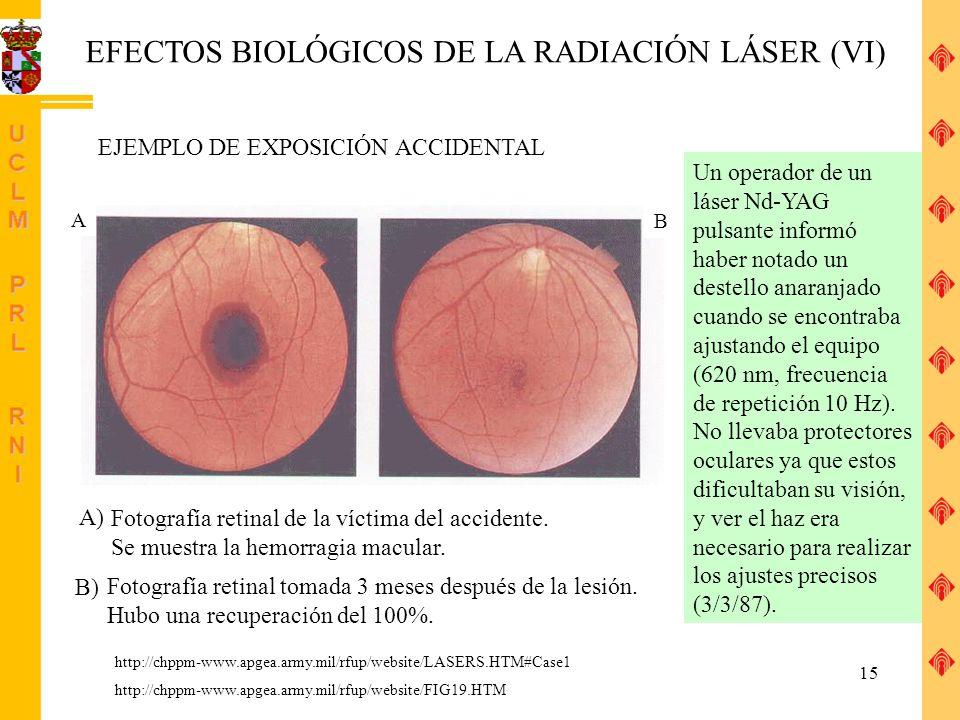 EFECTOS BIOLÓGICOS DE LA RADIACIÓN LÁSER (VI)