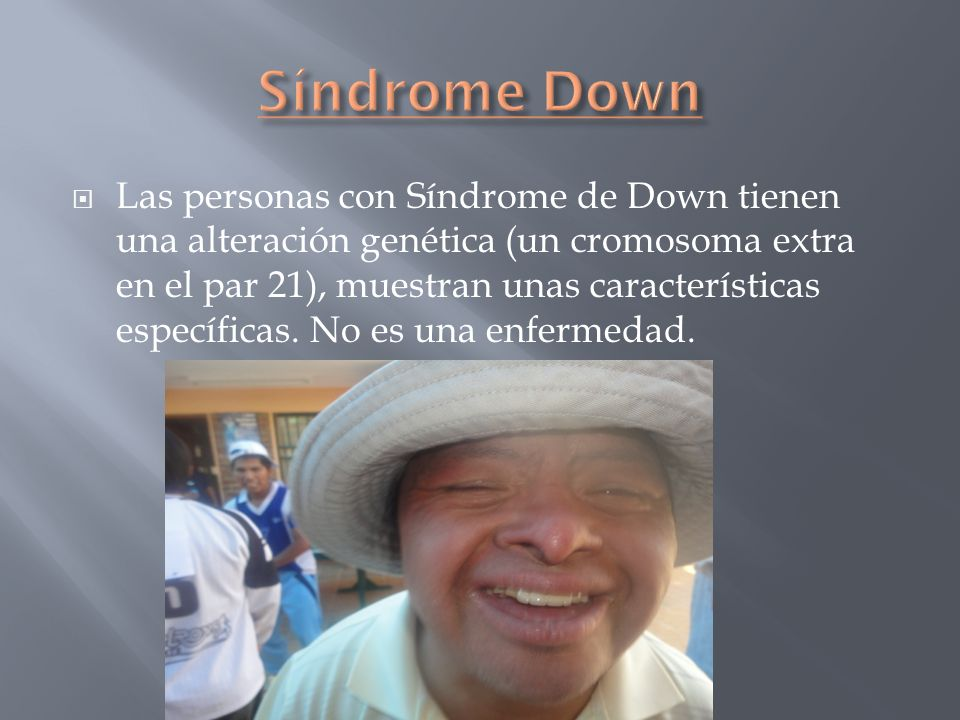 Síndrome Down