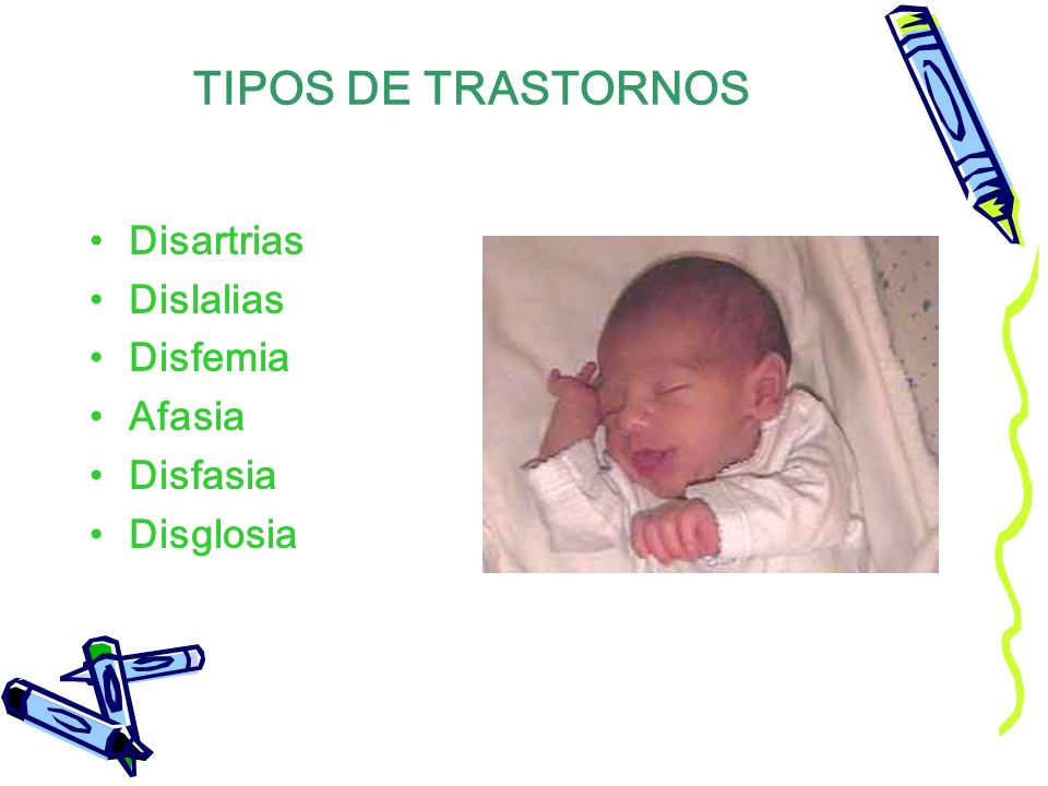TIPOS DE TRASTORNOS Disartrias Dislalias Disfemia Afasia Disfasia