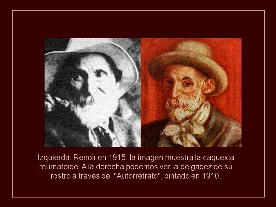 Izquierda: Renoir en 1915, la imagen muestra la caquexia reumatoide