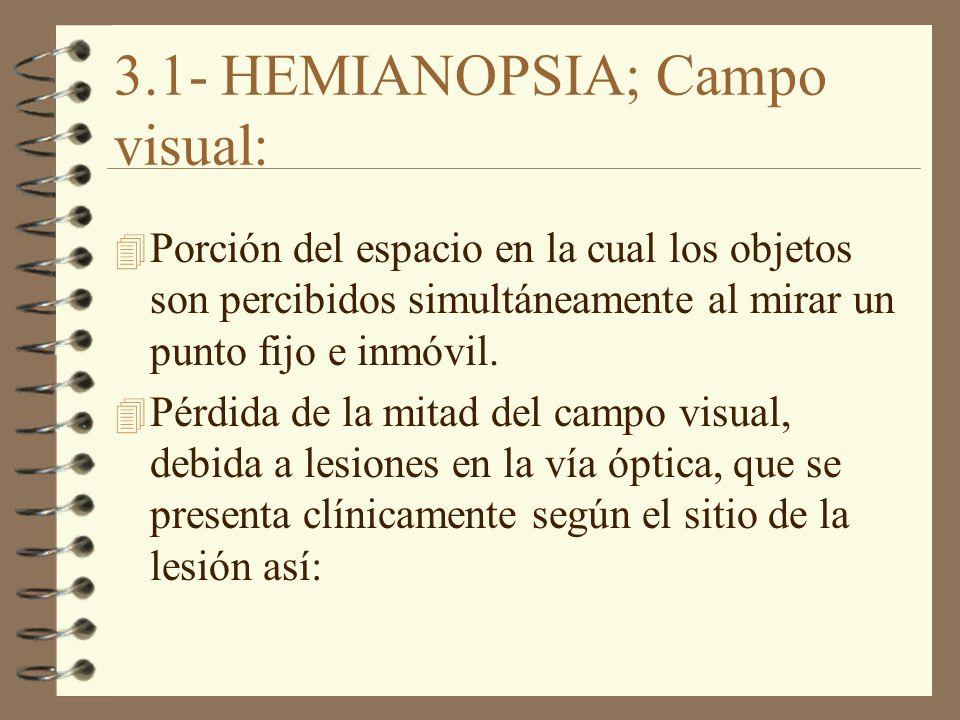 3.1- HEMIANOPSIA; Campo visual: