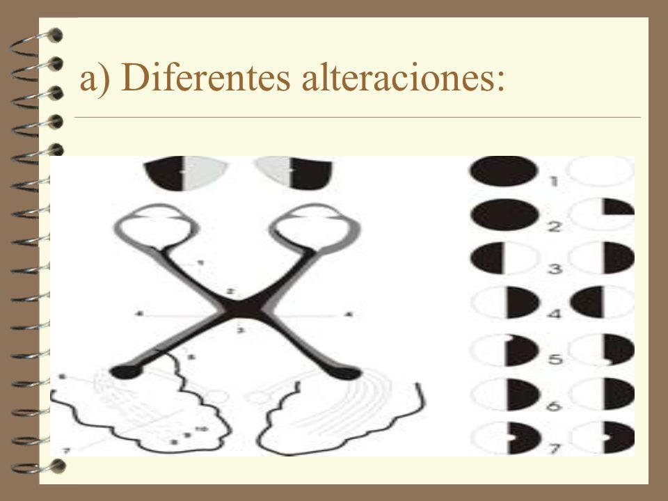 a) Diferentes alteraciones: