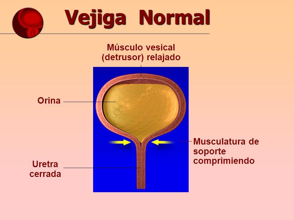 Músculo vesical (detrusor) relajado