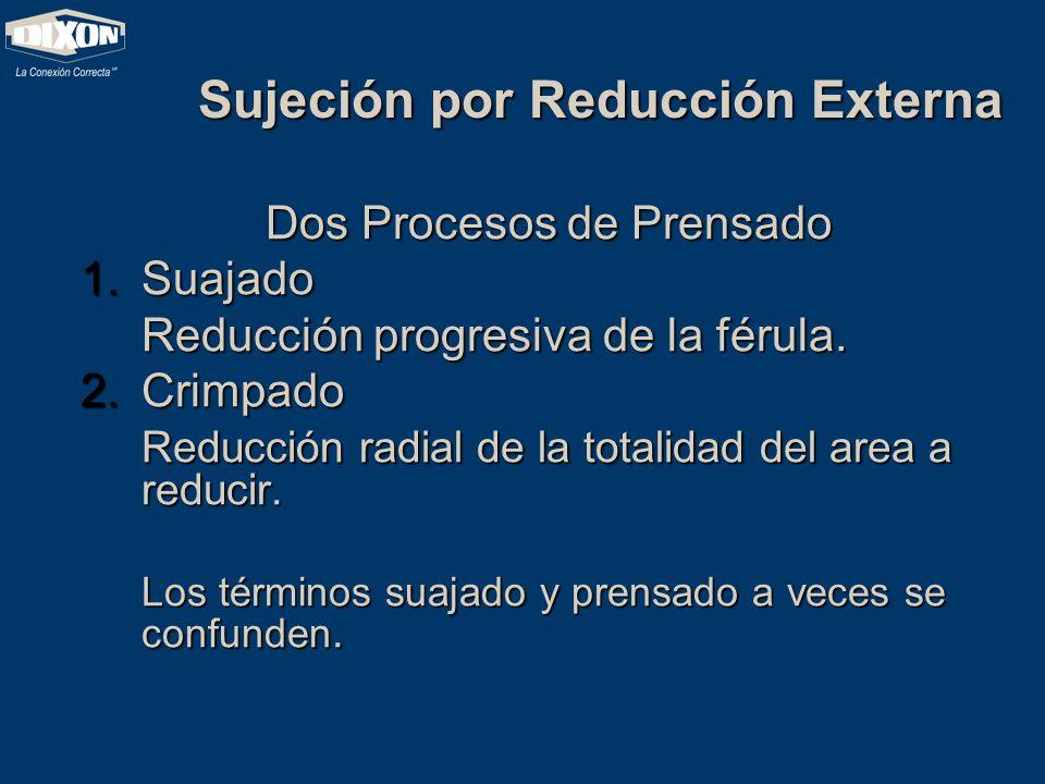 Sujeción por Reducción Externa