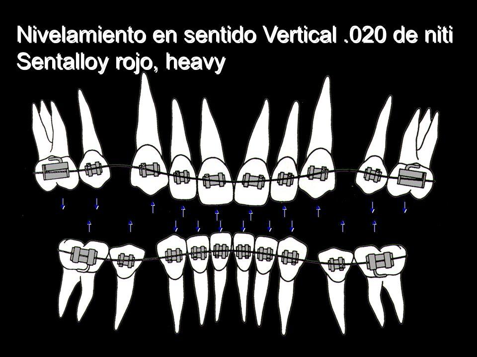 Nivelamiento en sentido Vertical .020 de niti