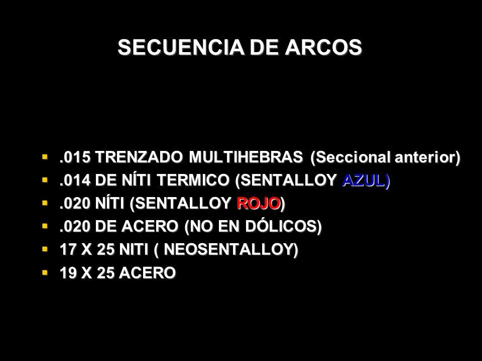SECUENCIA DE ARCOS .015 TRENZADO MULTIHEBRAS (Seccional anterior)