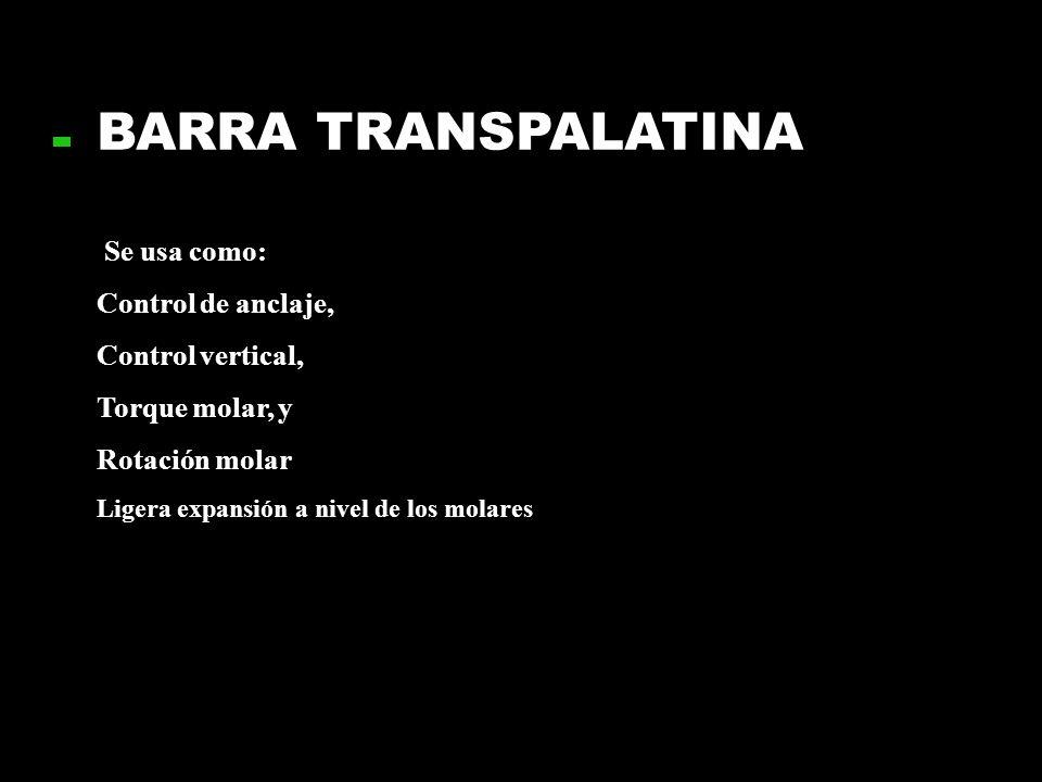 BARRA TRANSPALATINA Se usa como: Control de anclaje, Control vertical,