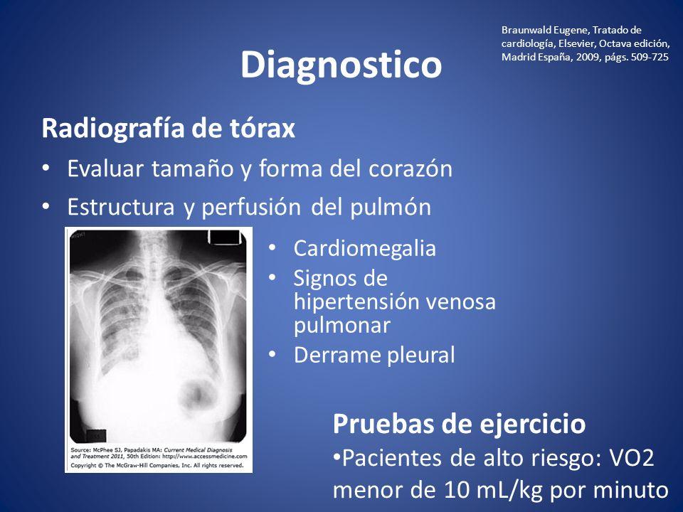 Diagnostico Radiografía de tórax Pruebas de ejercicio