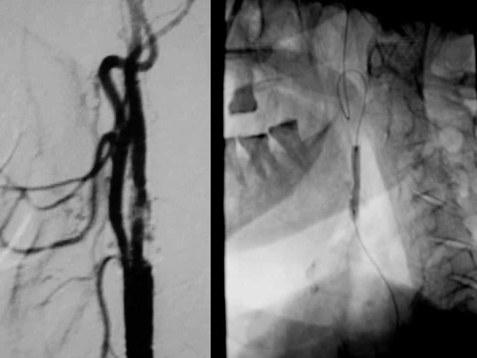 Se realiza fibrinolisis con rt-PA intra-arterial y se tratar de dilatar con balón.