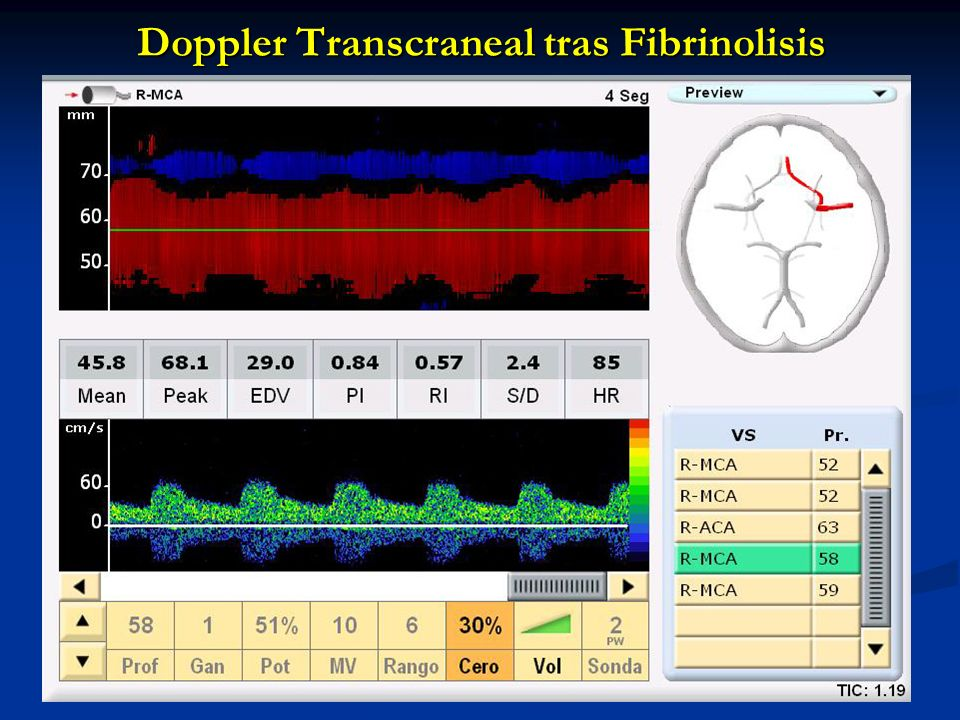 Doppler Transcraneal tras Fibrinolisis