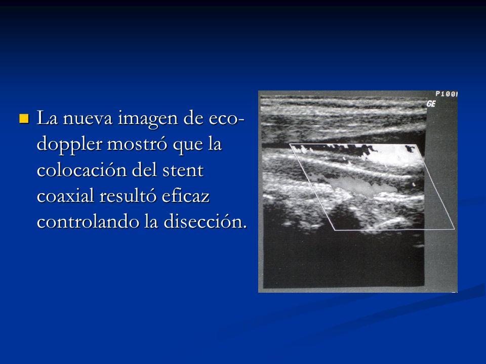 La nueva imagen de eco-doppler mostró que la colocación del stent coaxial resultó eficaz controlando la disección.