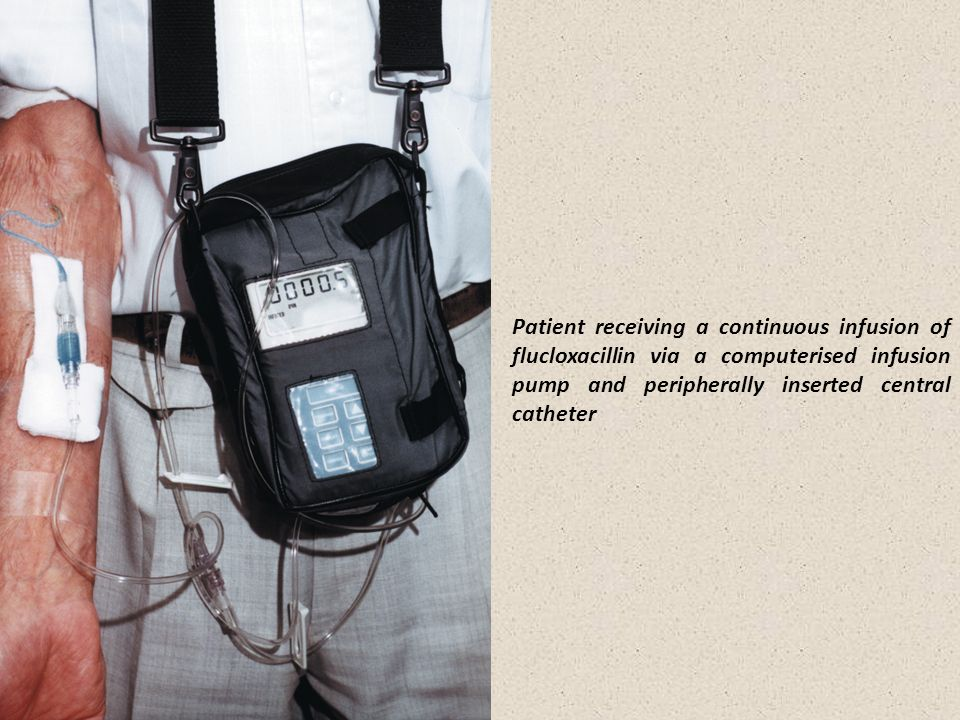 Patient receiving a continuous infusion of flucloxacillin via a computerised infusion pump and peripherally inserted central catheter