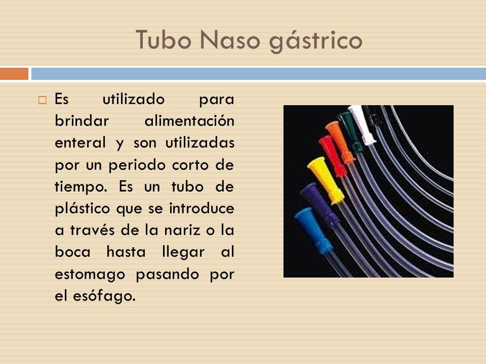 Tubo Naso gástrico