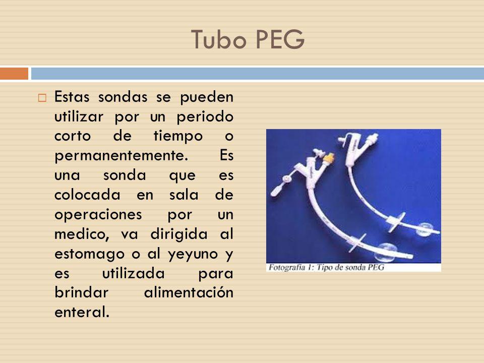Tubo PEG