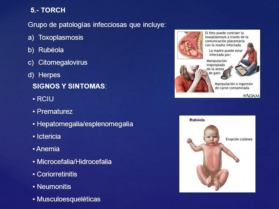 5.- TORCH Grupo de patologías infecciosas que incluye: Toxoplasmosis. Rubéola. Citomegalovirus. Herpes.