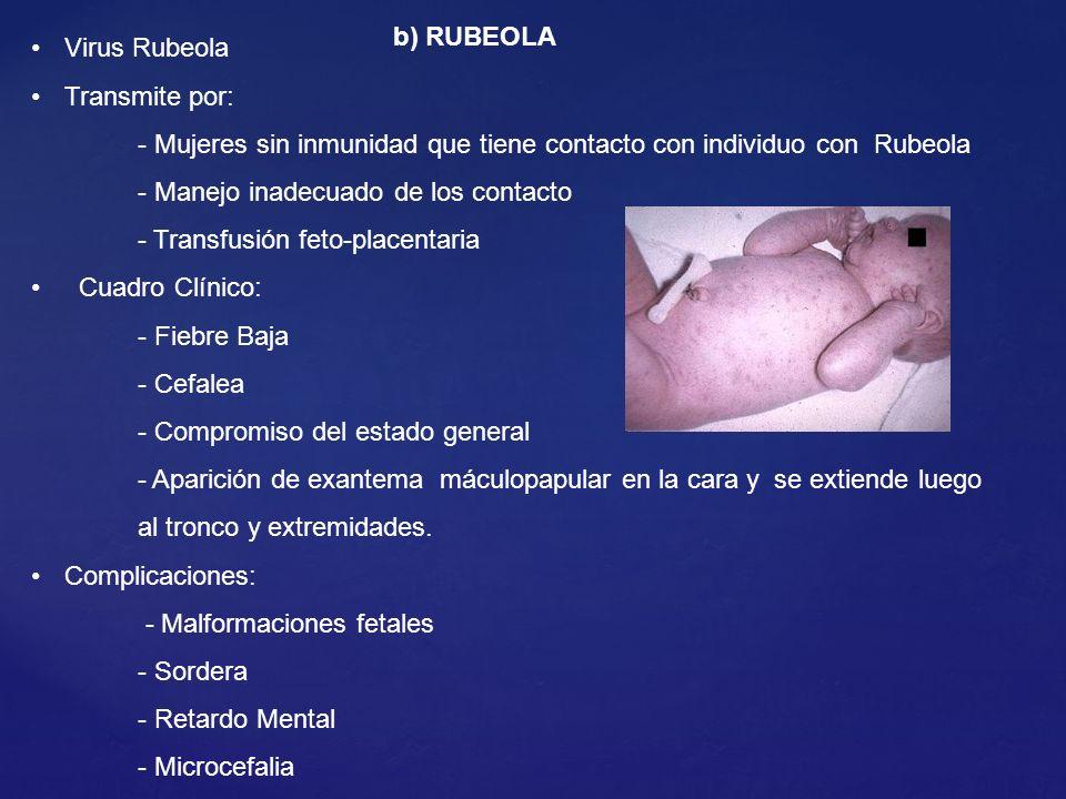 Virus Rubeola Transmite por: - Mujeres sin inmunidad que tiene contacto con individuo con Rubeola.