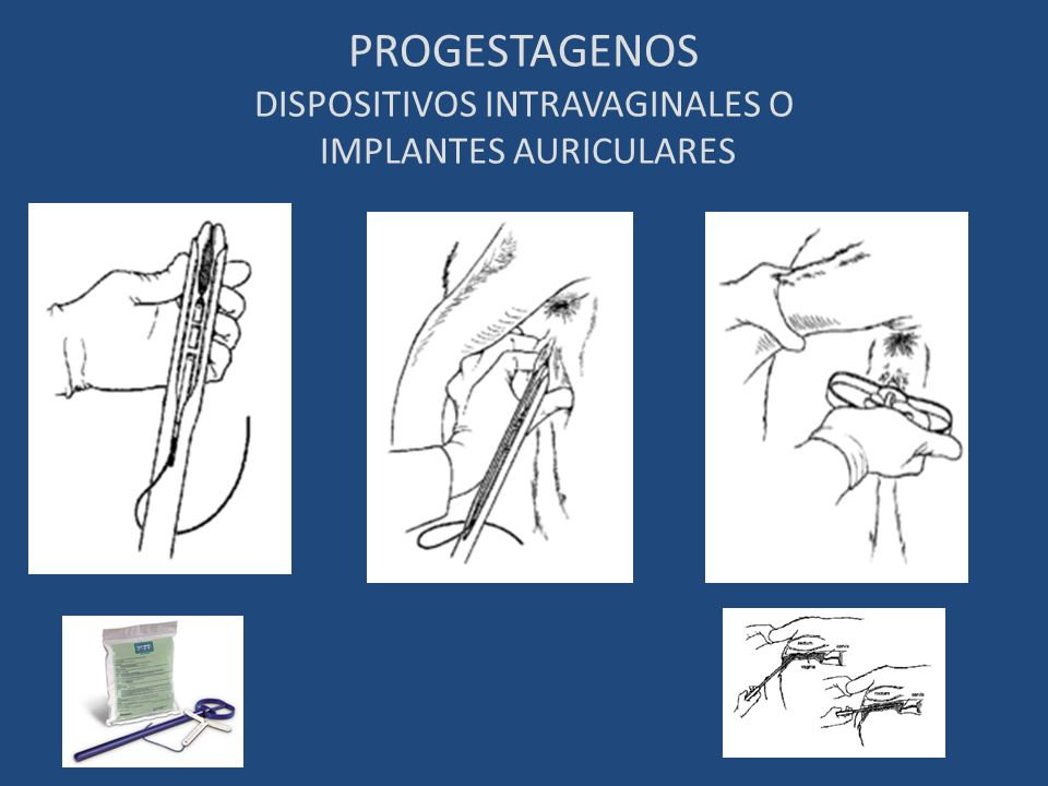 PROGESTAGENOS DISPOSITIVOS INTRAVAGINALES O IMPLANTES AURICULARES