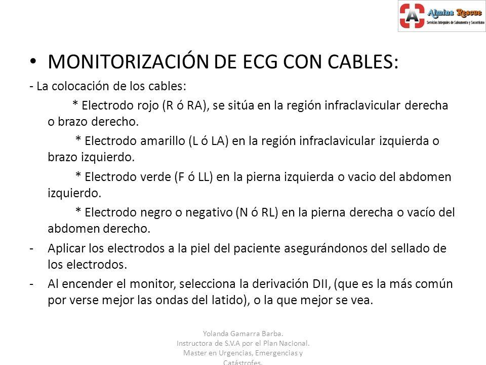 MONITORIZACIÓN DE ECG CON CABLES: