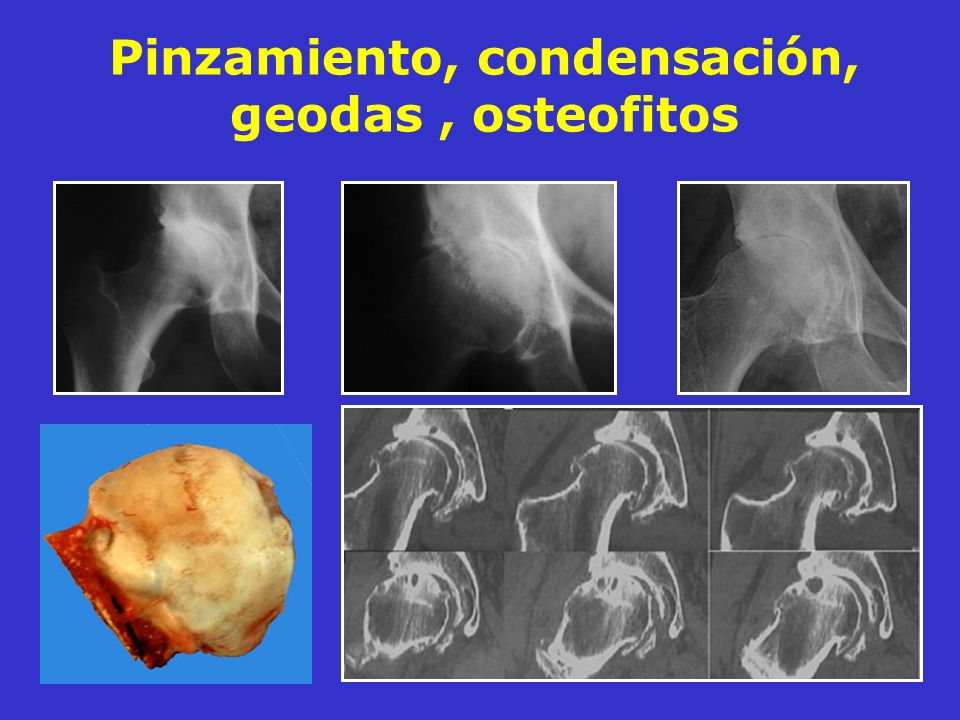 Pinzamiento, condensación, geodas , osteofitos
