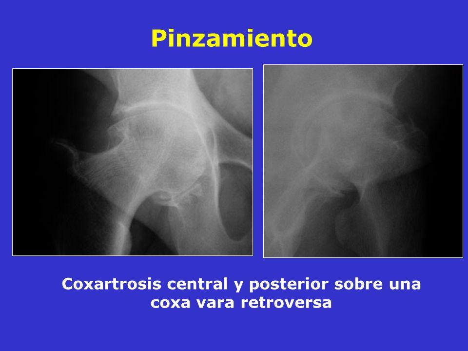 Coxartrosis central y posterior sobre una coxa vara retroversa