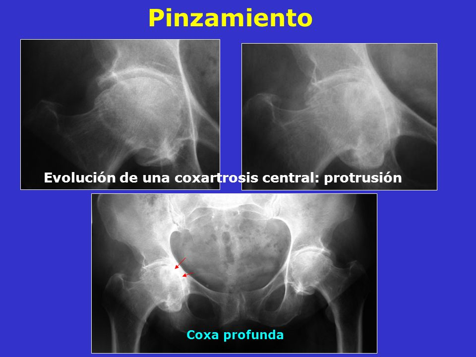 Evolución de una coxartrosis central: protrusión