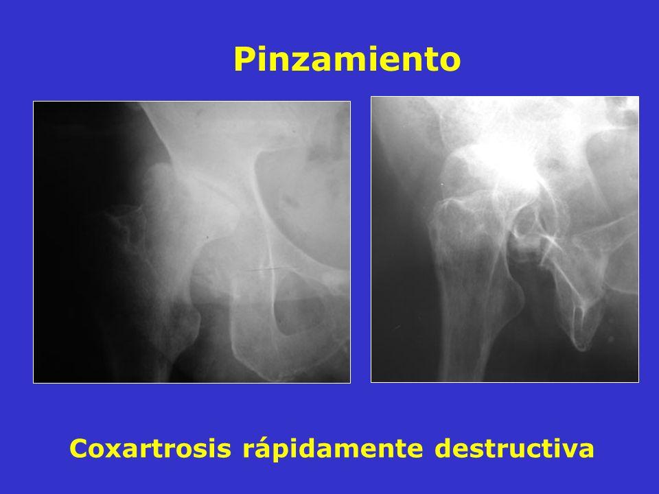 Coxartrosis rápidamente destructiva