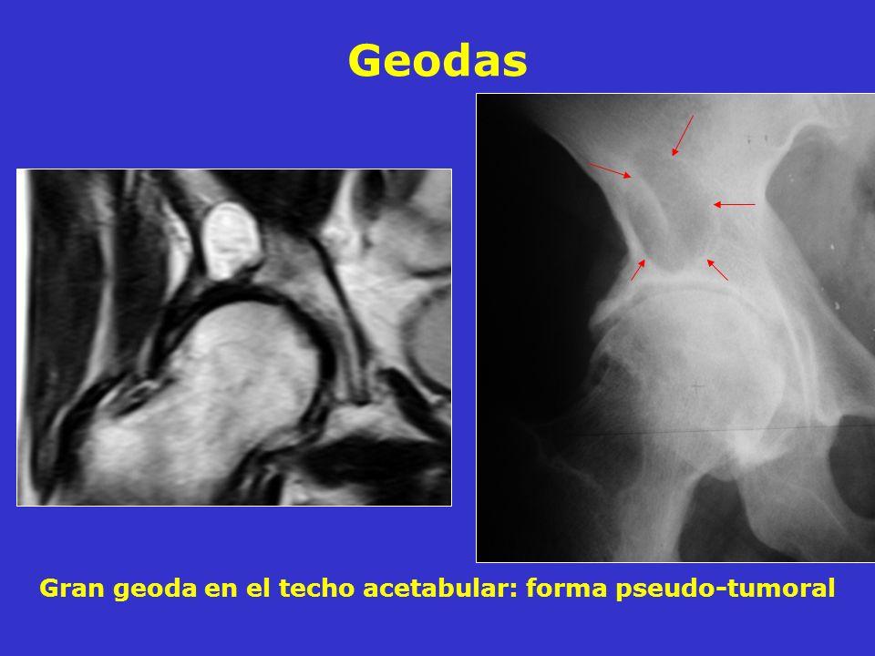 Gran geoda en el techo acetabular: forma pseudo-tumoral