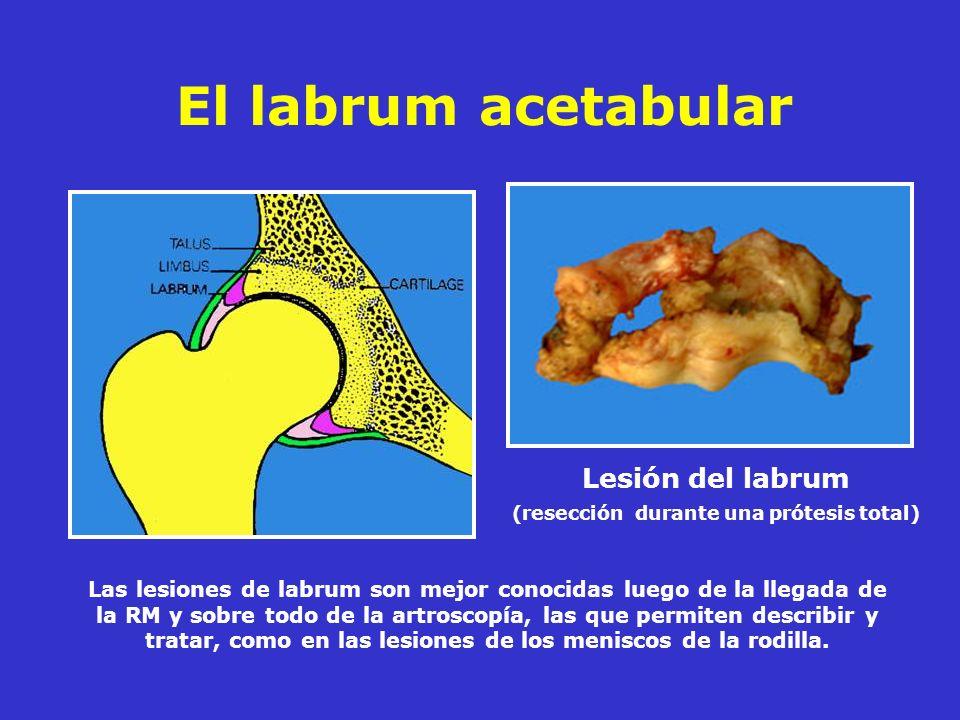 Lesión del labrum (resección durante una prótesis total)