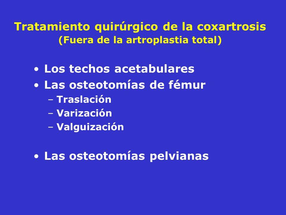 Los techos acetabulares Las osteotomías de fémur
