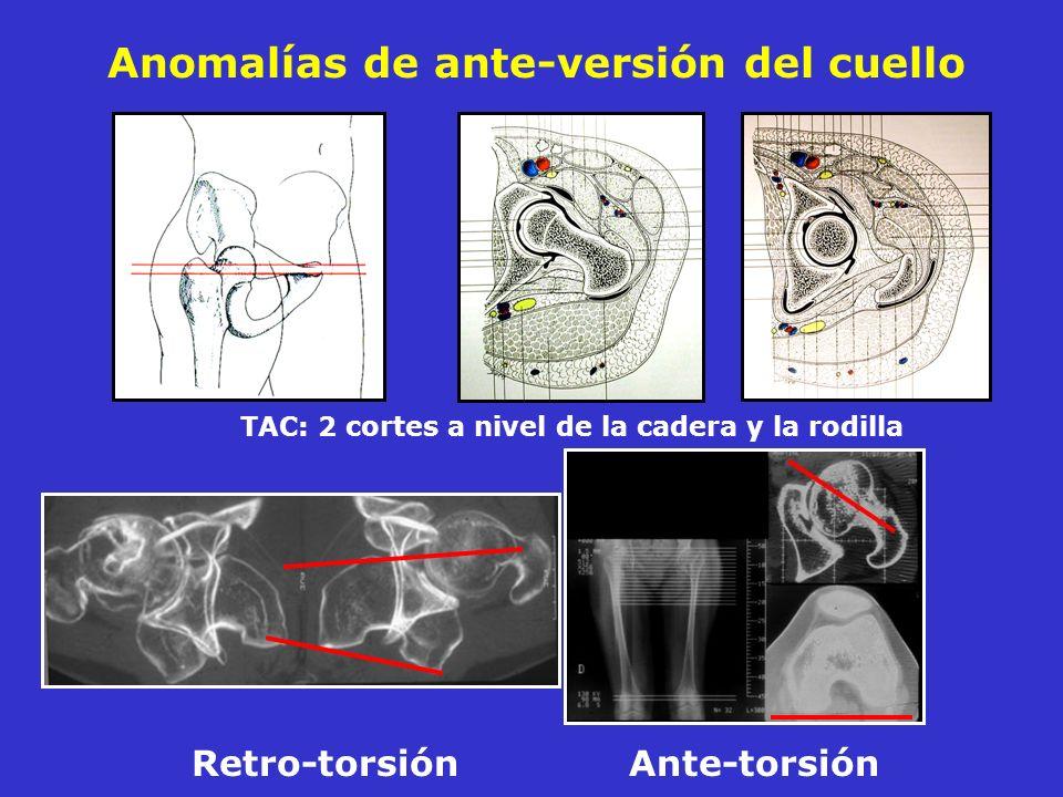 Anomalías de ante-versión del cuello