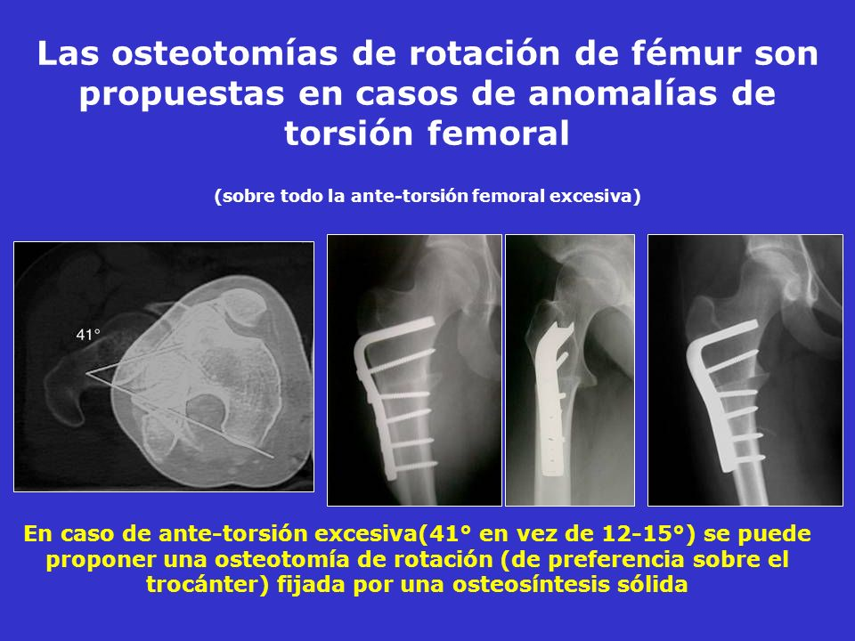 Las osteotomías de rotación de fémur son propuestas en casos de anomalías de torsión femoral (sobre todo la ante-torsión femoral excesiva)