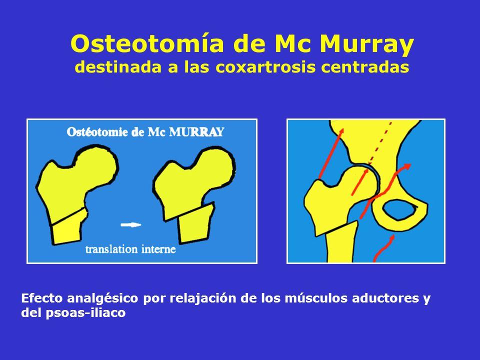 Osteotomía de Mc Murray destinada a las coxartrosis centradas