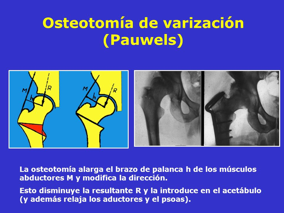Osteotomía de varización (Pauwels)