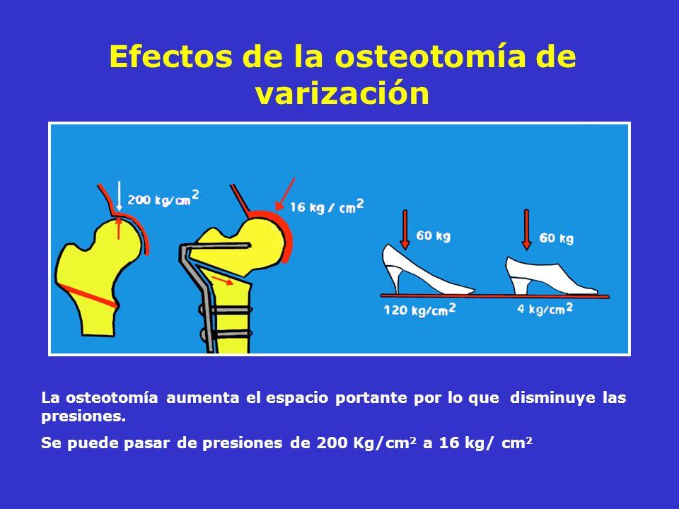 Efectos de la osteotomía de varización