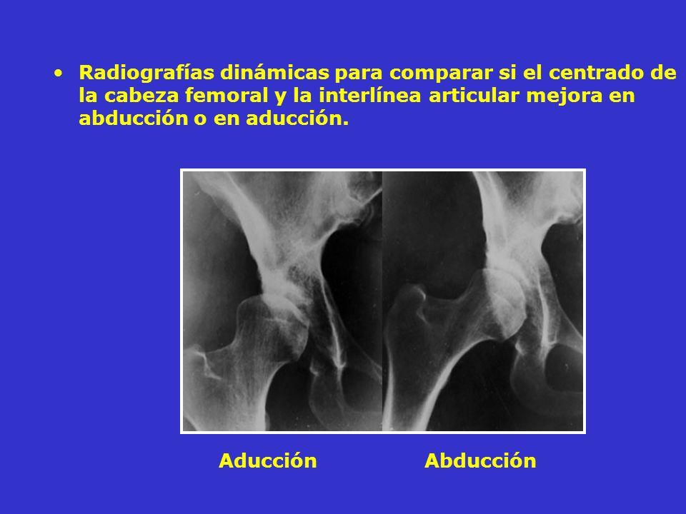 Radiografías dinámicas para comparar si el centrado de la cabeza femoral y la interlínea articular mejora en abducción o en aducción.