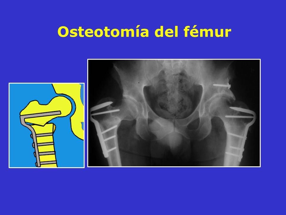 Osteotomía del fémur